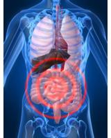 Colitis ulcerosa ist eine häufig auftretende Darmerkrankung