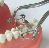 Walser Matrizen mit einer Handbewegung in Sekunden gelegt und entfernt/Foto: Dr. Walser Dental GmbH