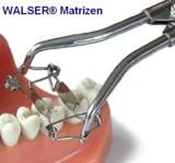 Walser Matrizensystem/Foto: Dr. Walser Dental GmbH