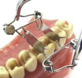 Walser Teilmatrize/Foto: Dr. Walser Dental GmbH