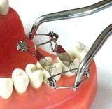 Matrize Zahn/Foto: Dr. Walser Dental GmbH