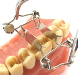 Zahn-Matrize aus dem Teilmatrizensystem von Dr. Walser Dental/Foto: Dr. Walser Dental GmbH
