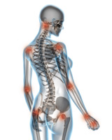 Arthrose ist schmerzhaft. Grafik: Fotolia/StudioAraminta