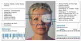 Symptome und Verlaufsmerkmale von Clusterkopfschmerzen