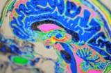 Migräne ensteht durch veränderte Signalübertragung von Nervenzellen im Gehirn