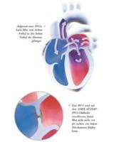Offenes Foramen ovale und Migräne