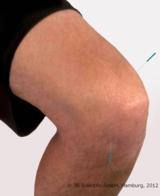 Sanfte und effektive Akupunktur: SEIRIN® J-Typ, erhältlich bei 3B Scientific