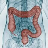 Darmkrebs ist umso besser heilbar, je früher er erkannt wird